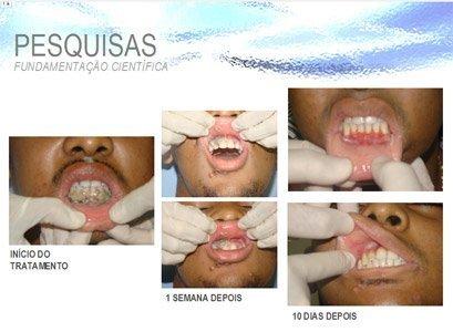 Odontocal